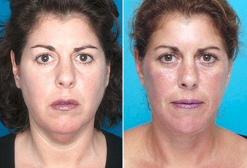 best of Procedures Facial rejuvanation