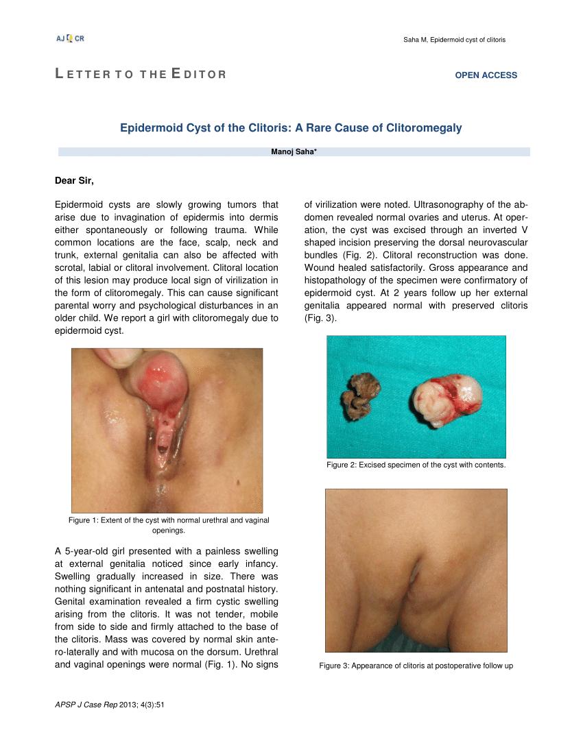 Drizzle reccomend Clitoromegaly and clitoris soreness