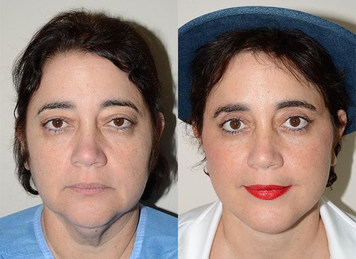 Facial rejuvanation procedures