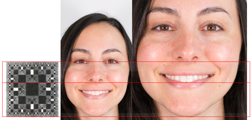 best of Proportions Facial esthetic