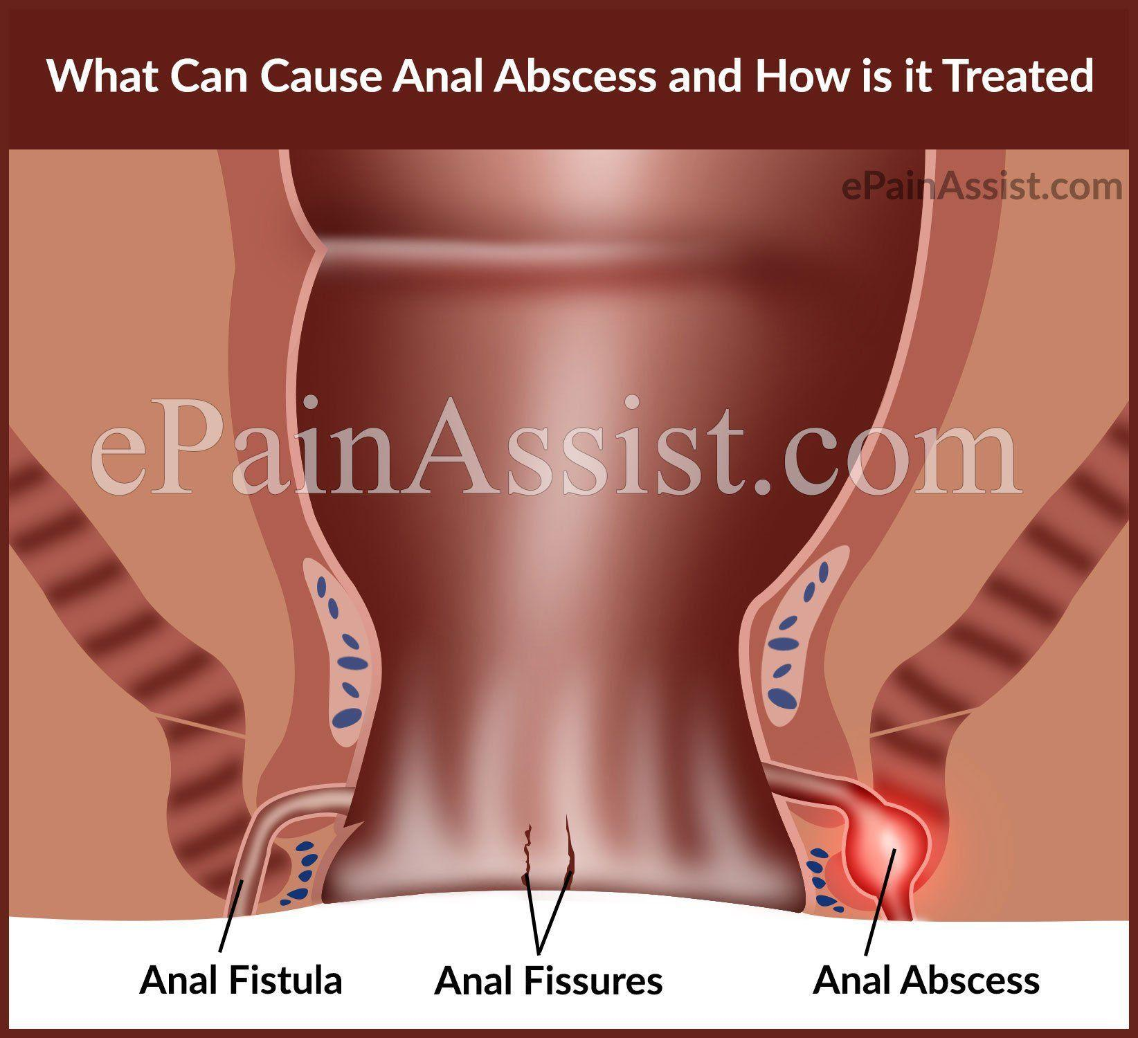 Bacteria and anus