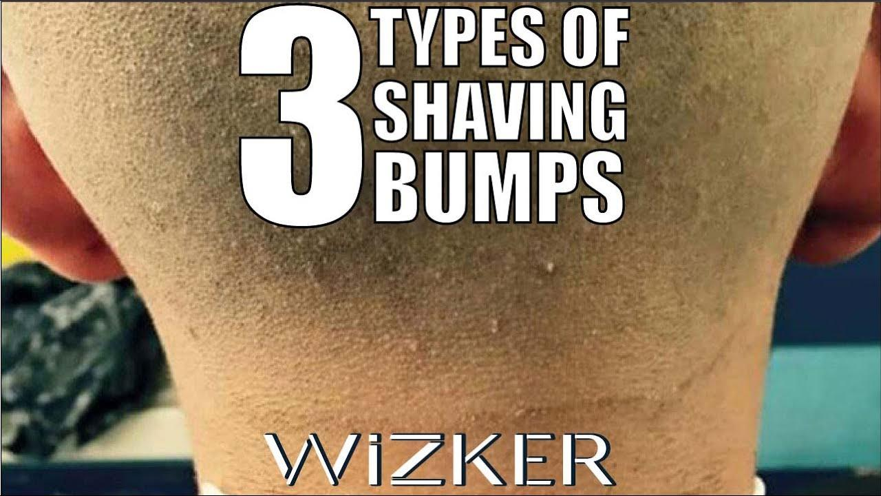 best of Shaved sting area semen a recently Can