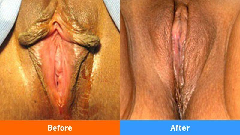 Clitoris reduction surgery