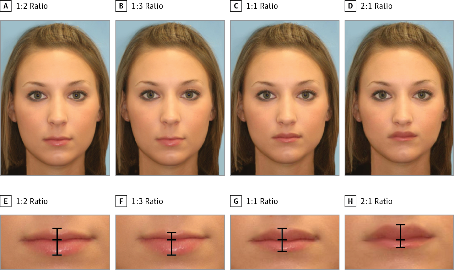 French F. reccomend Facial esthetic proportions