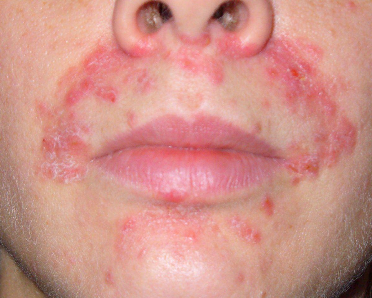 best of Facial dermatitis Perio