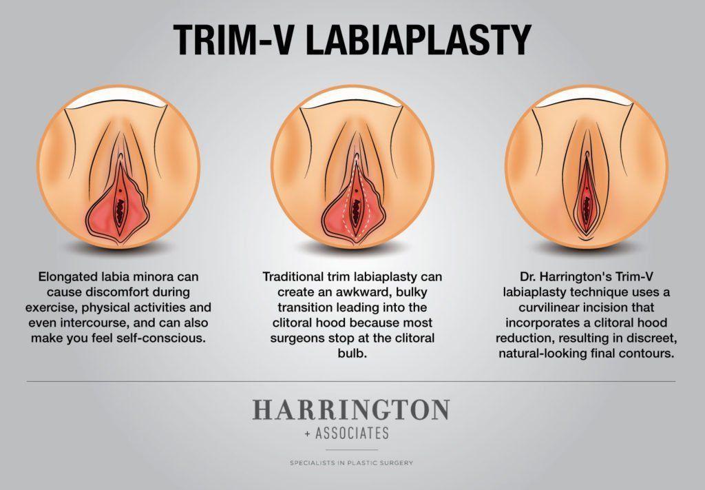 best of Clitoris Recovery swollen labiaplasty