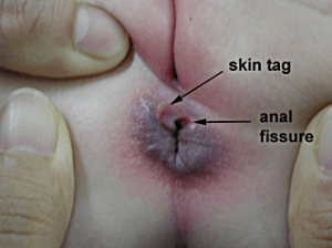 Skin around the anus sore pain
